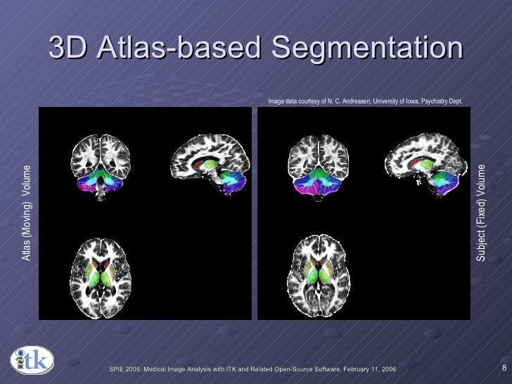 3D Atlas-based Segmentation Atlas (Moving)  Volume Subject (Fixed) Volume Image data courtesy of N. C. Andreasen, Universi...