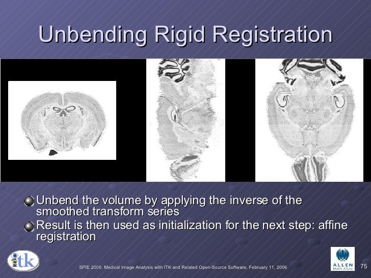Unbending Rigid Registration <ul><li>Unbend the volume by applying the inverse of the smoothed transform series </li></ul>...
