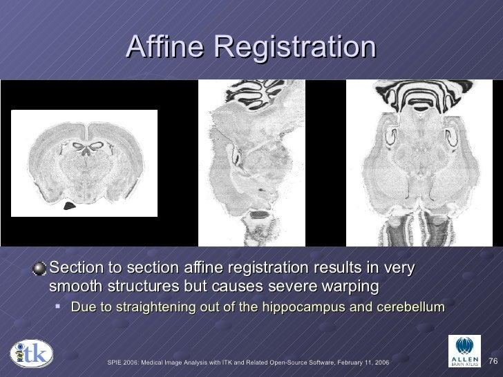 Affine Registration <ul><li>Section to section affine registration results in very smooth structures but causes severe war...