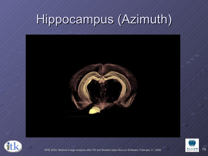 Hippocampus (Azimuth)