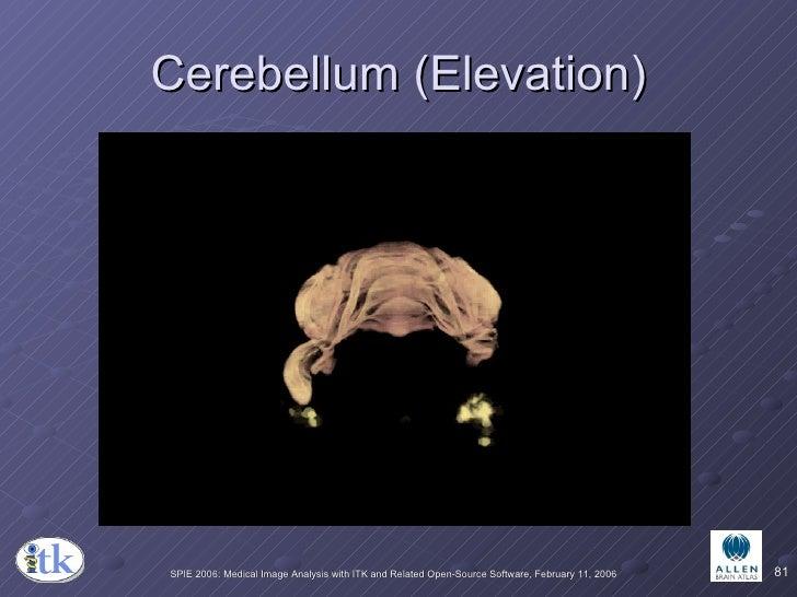 Cerebellum (Elevation)