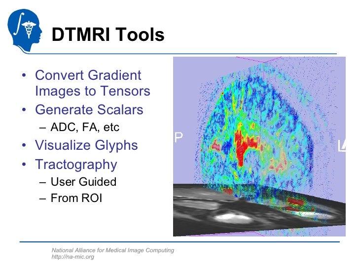 DTMRI Tools <ul><li>Convert Gradient Images to Tensors </li></ul><ul><li>Generate Scalars </li></ul><ul><ul><li>ADC, FA, e...