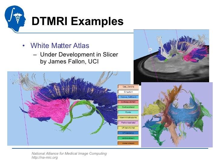 DTMRI Examples <ul><li>White Matter Atlas </li></ul><ul><ul><li>Under Development in Slicer by James Fallon, UCI </li></ul...