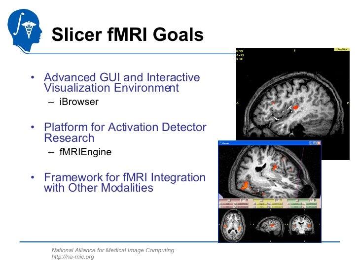 Slicer fMRI Goals <ul><li>Advanced GUI and Interactive Visualization Environment </li></ul><ul><ul><li>iBrowser </li></ul>...