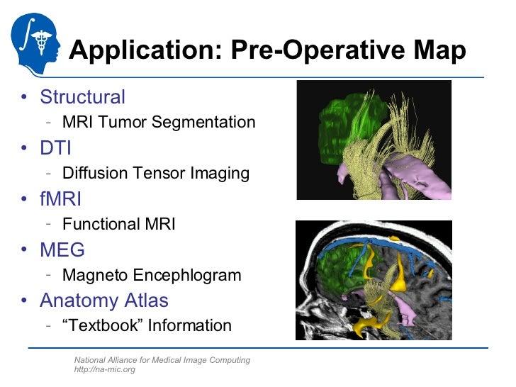 Application: Pre-Operative Map <ul><li>Structural </li></ul><ul><ul><li>MRI Tumor Segmentation </li></ul></ul><ul><li>DTI ...