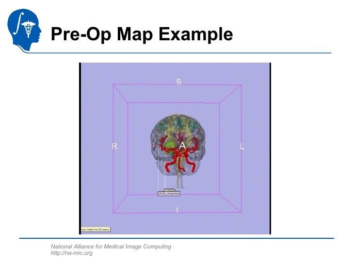Pre-Op Map Example