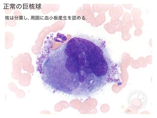 正常の巨核球核は分葉し, 周囲に血小板産生を認める.