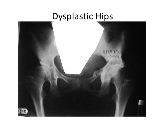 Interlocking Triple Pelvic Osteotomy - John O'Hara Slide 2