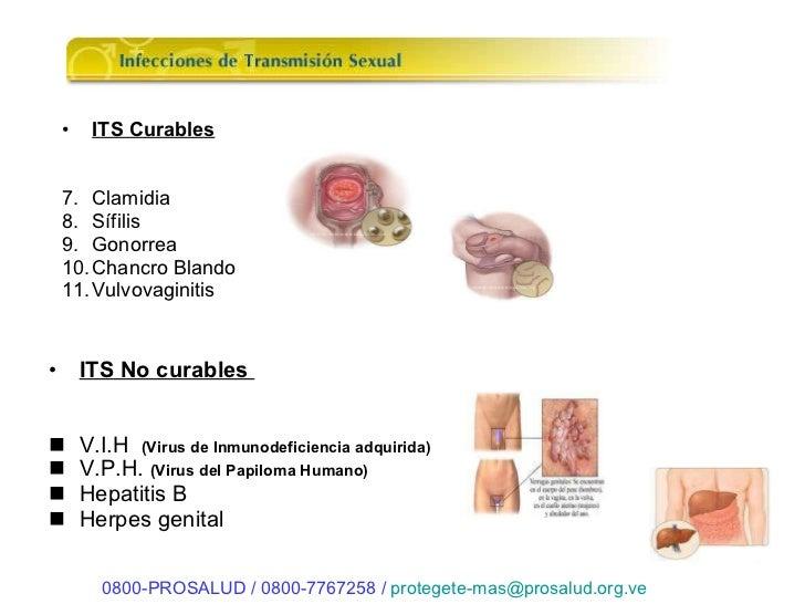 Infecciones Sexsuales 85