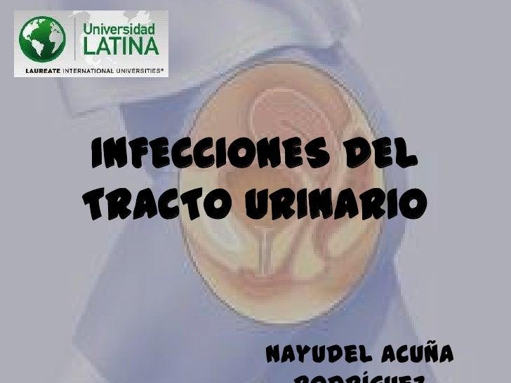 INFECCIONES DELTRACTO URINARIO       Nayudel Acuña