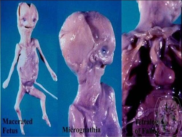 iud in uterus