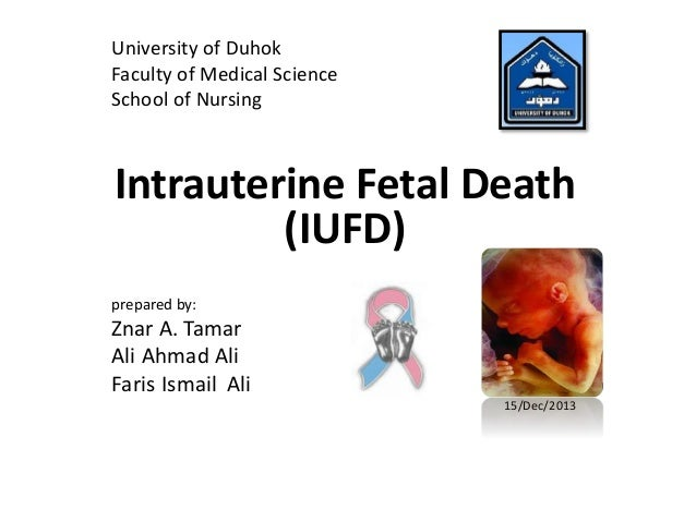 University of Duhok  Faculty of Medical Science  School of Nursing  Intrauterine Fetal Death  (IUFD)  prepared by:  Znar A...