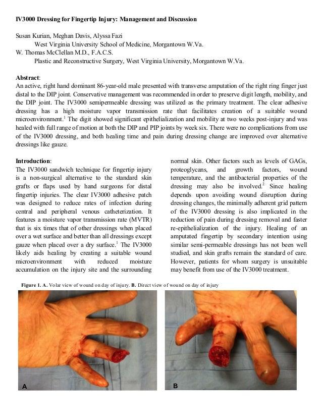 IV3000 Dressing for Fingertip Injury: Management and Discussion Susan Kurian, Meghan Davis, Alyssa Fazi West Virginia Univ...