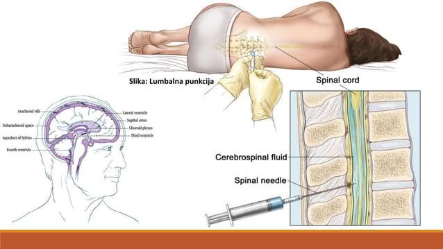 • sredinom kralješnične moždine prolazi kanal – canalis centralis • siva tvar (substantia grisea) nalazi se u sredini možd...