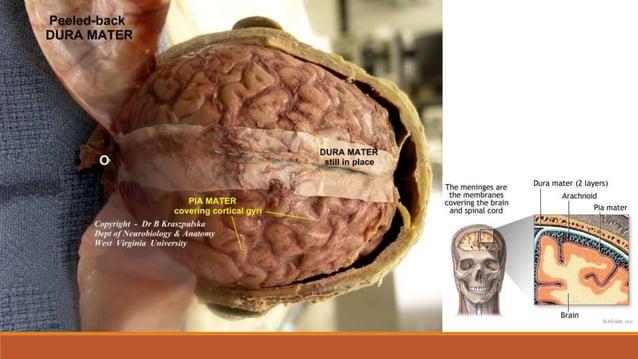 Cerebrospinalni likvor (CSL) •mozgovno-moždinska tekućina (liquor cerebrospinalis) je bezbojna bistra tekućina koja se stv...