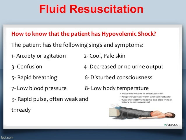 Iv fluid therapy (types, indications, doses calculation)
