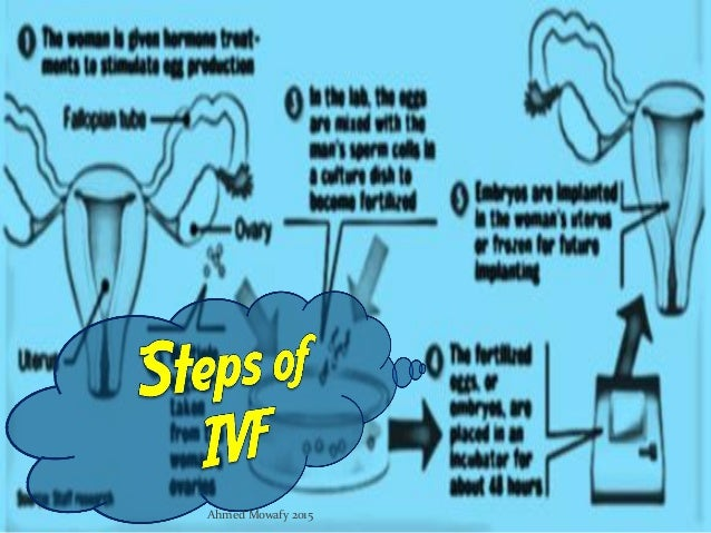 an overview of ivf or in vitro fertilization Ivf treatment  in vitro fertilization (ivf) is an advanced method used to help infertile women and couples conceive in our laboratory, we can fertilize eggs and sperm and implant the selected embryo in the mother's uterus.