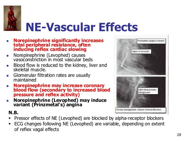 28 NE-Vascular Effects  Norepinephrine significantly increases total peripheral resistance, often inducing reflex cardiac...