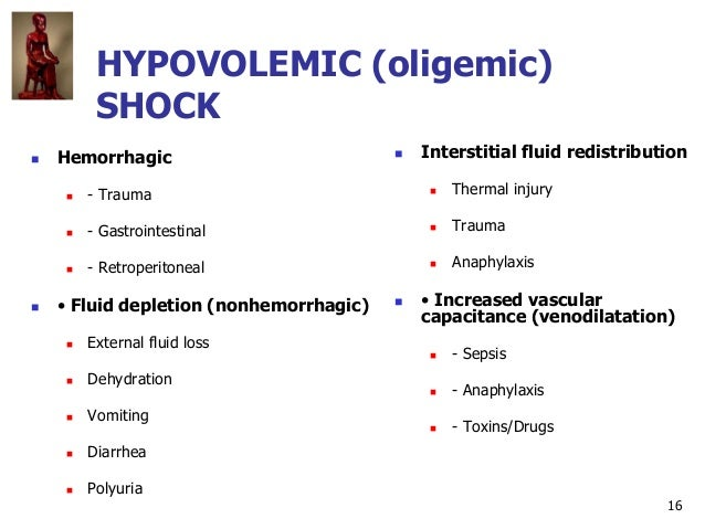 16 HYPOVOLEMIC (oligemic) SHOCK  Hemorrhagic  - Trauma  - Gastrointestinal  - Retroperitoneal  • Fluid depletion (non...