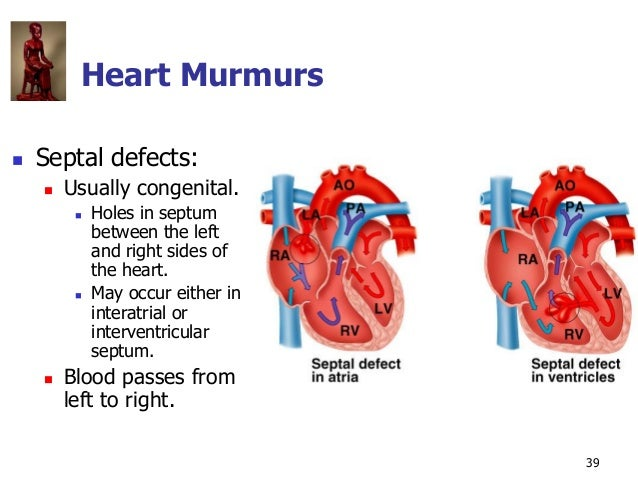 Copyright © The McGraw-Hill Companies, Inc. Permission required for reproduction or display. 39 Heart Murmurs  Septal def...