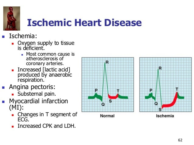 Copyright © The McGraw-Hill Companies, Inc. Permission required for reproduction or display. 62 Ischemic Heart Disease  I...