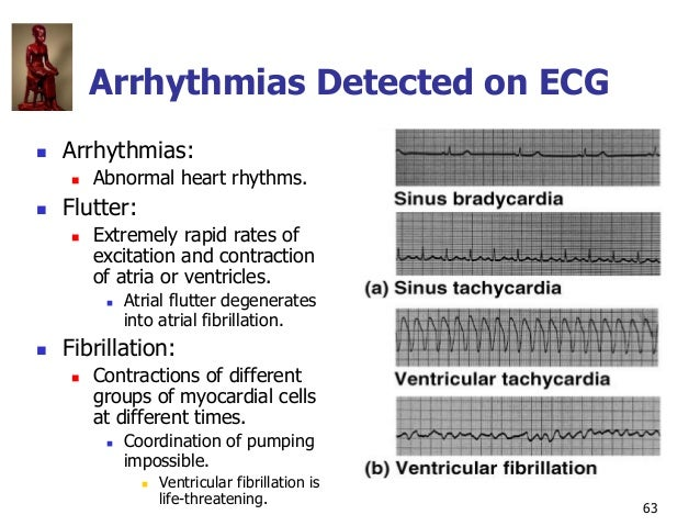 Copyright © The McGraw-Hill Companies, Inc. Permission required for reproduction or display. 63 Arrhythmias Detected on EC...