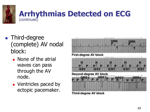 Copyright © The McGraw-Hill Companies, Inc. Permission required for reproduction or display. 65 Arrhythmias Detected on EC...