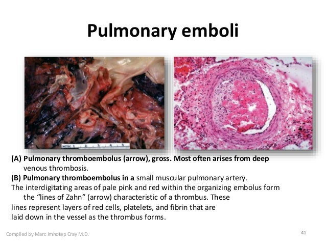 40 41 Compiled By Marc Imhotep Cray MD Pulmonary Emboli
