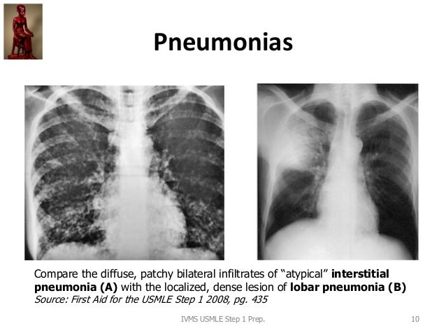 """Pneumonias IVMS USMLE Step 1 Prep. 10 Compare the diffuse, patchy bilateral infiltrates of """"atypical"""" interstitial pneumon..."""