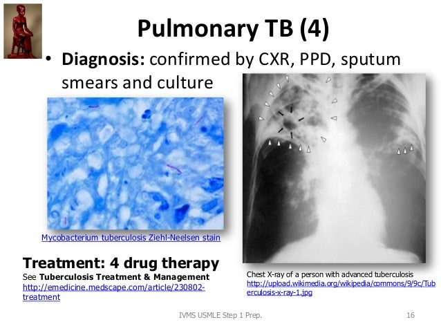 Pulmonary TB (4) • Diagnosis: confirmed by CXR, PPD, sputum smears and culture Chest X-ray of a person with advanced tuber...