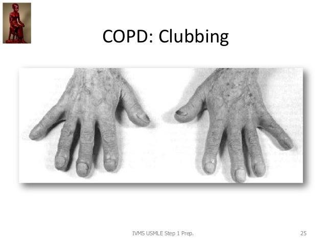 COPD: Clubbing IVMS USMLE Step 1 Prep. 25