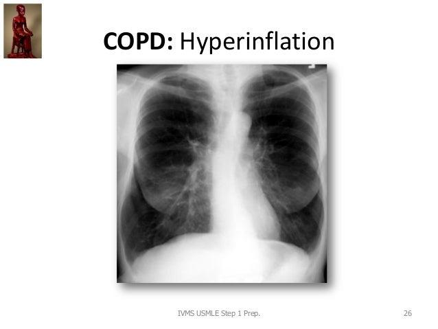 COPD: Hyperinflation IVMS USMLE Step 1 Prep. 26