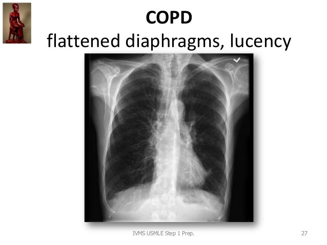 COPD flattened diaphragms, lucency IVMS USMLE Step 1 Prep. 27