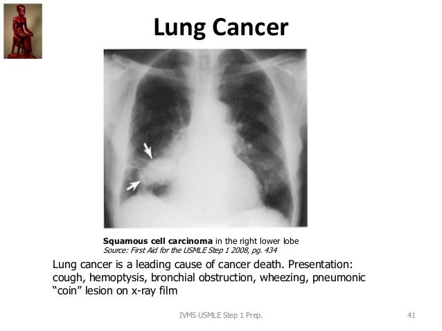 Lung Cancer IVMS USMLE Step 1 Prep. 41 Squamous cell carcinoma in the right lower lobe Source: First Aid for the USMLE Ste...