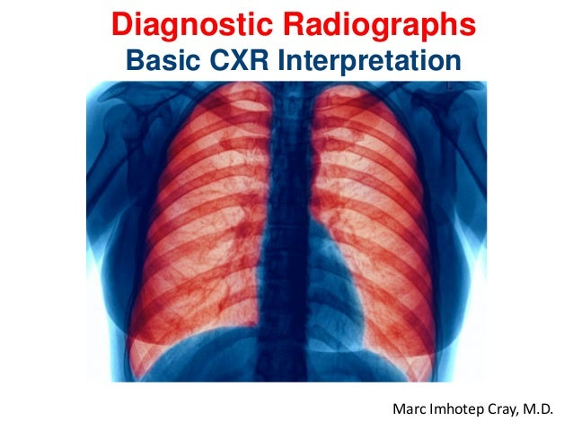 Review of Basic Chest X-Ray Diagnostic Radiographs Prepared and presented by Marc Imhotep Cray, M.D. BMS/CK Teacher 1