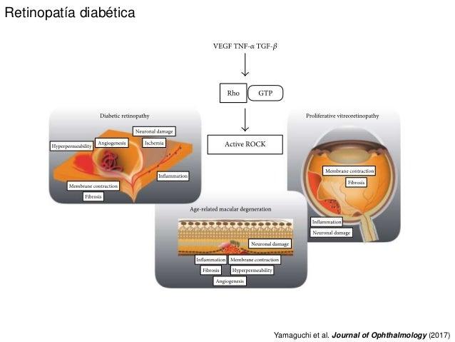 Retinopatía diabética Yamaguchi et al. Journal of Ophthalmology (2017)