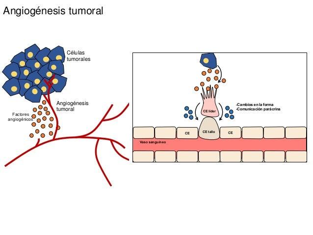 Angiogénesis tumoral Células tumorales Angiogénesis tumoral Factores angiogénicos CE CE líder CE tallo CE Vaso sanguíneo -...