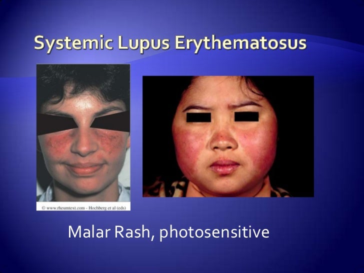 whats systemic lupus erytematosus essay What's the difference between systemic and discoid lupus what is the difference between drug-induced is fatigue a symptom of systemic lupus erythematosus sle.