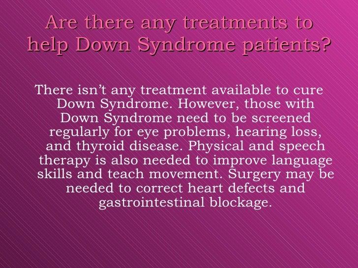 Down syndrome anatomy