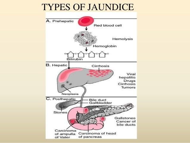 Jaundice 45012918