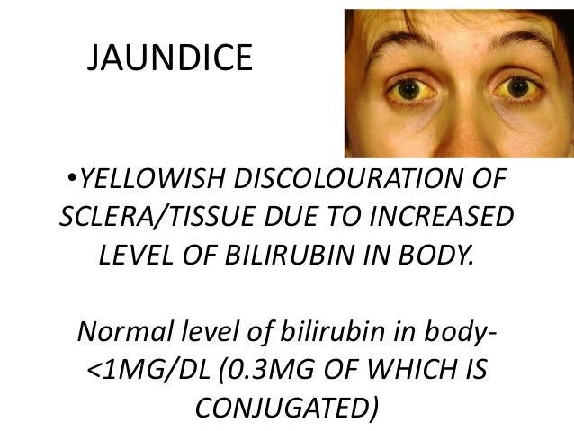 JAUNDICE •YELLOWISH DISCOLOURATION OF SCLERA/TISSUE DUE TO INCREASED LEVEL OF BILIRUBIN IN BODY.  Normal level of bilirubi...