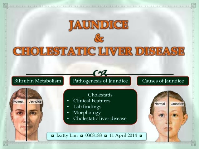 ◘ Izatty Lim ◘ 0308188 ◘ 11 April 2014 ◘ Bilirubin Metabolism Cholestatis • Clinical Features • Lab findings • Morphology ...