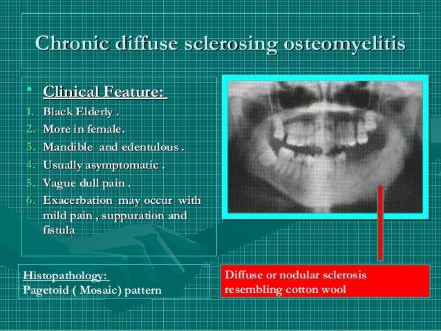 Jaw bone disaese Chronic Osteomyelitis Jaw