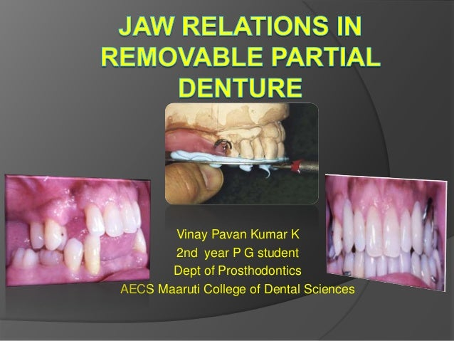 jaw relation in rpd
