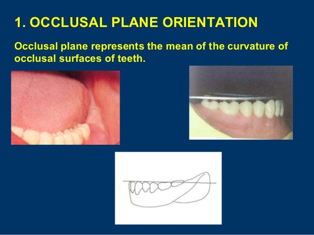 Diagram Of Tooth Occlusal Plane - Illustration Of Wiring Diagram •