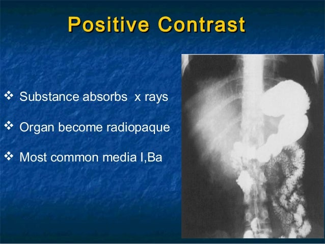 radiopaque contrast
