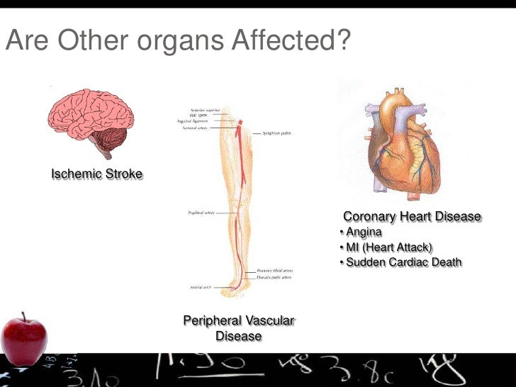 Jayvardan science project on heart dieases
