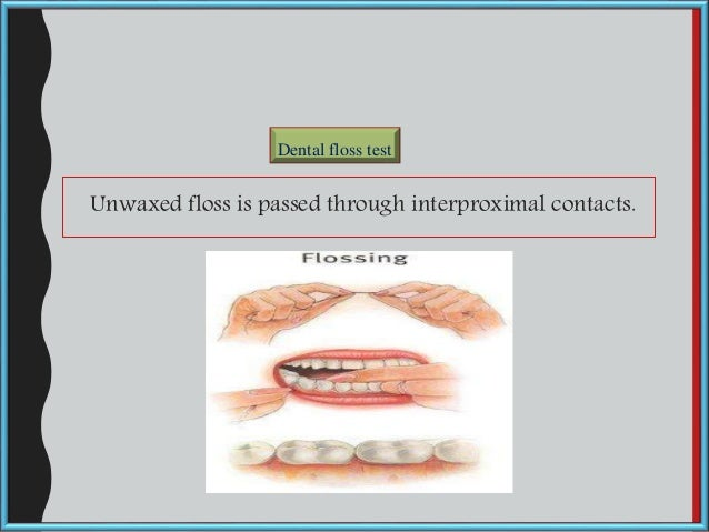 Unwaxed floss is passed through interproximal contacts. Dental floss test