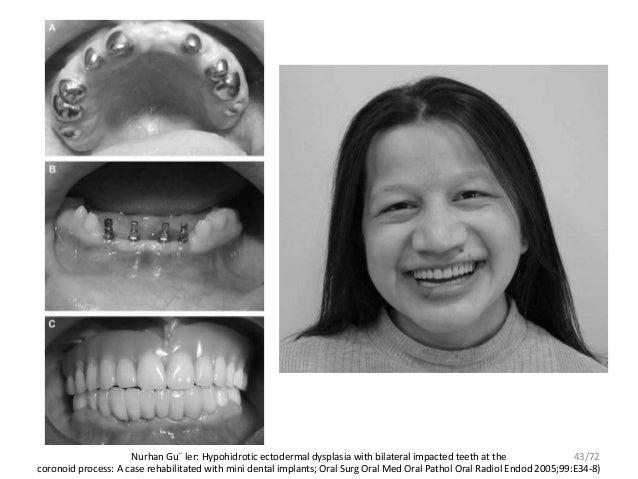 Journal club in prostodonticd4 ectodermal dysplasia