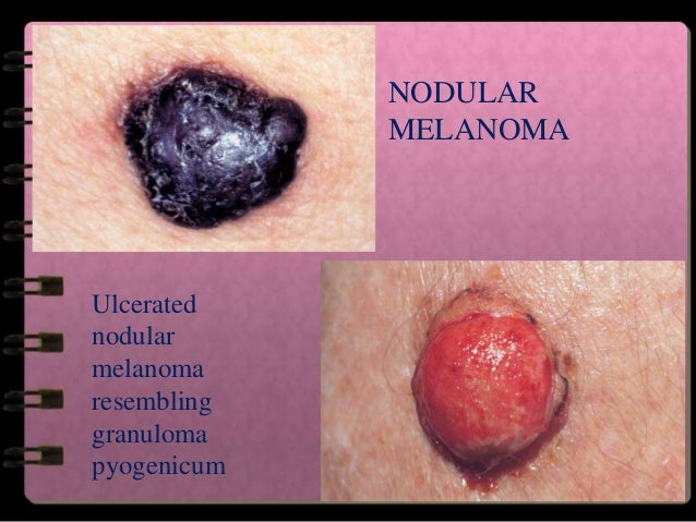 Data Set For Cutaneous Melanoma Reporting